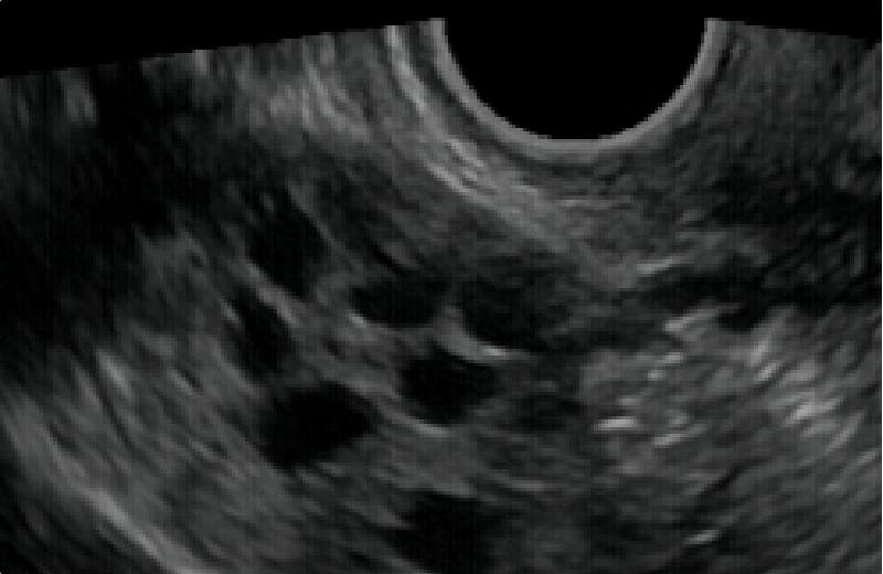 ほう 性 症 多 卵巣